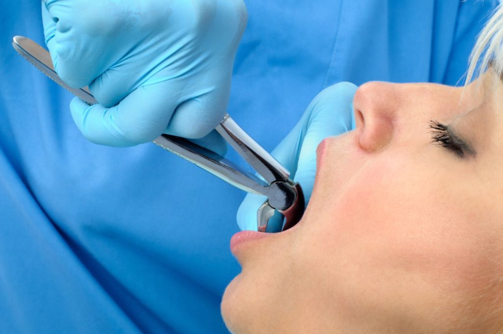 Patient having tooth extracted at Novato Oral Surgery