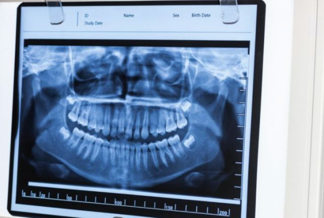 Signs-Your-Wisdom-Teeth-Are-Emerging-blog-novato-cut